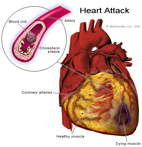 What is the difference between a heart attack and a cardiac arrest?